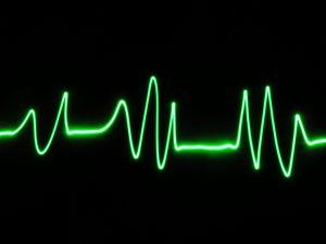 goodling_heart_beat.jpg